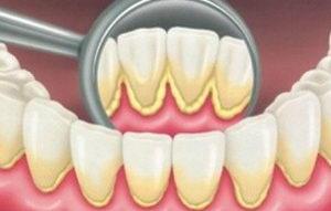 Что такое зубной налет?