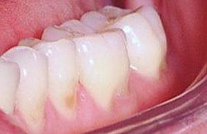 Что такое эрозия зубной эмали?