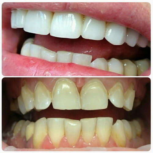 Флюороз до и после лечения зубов