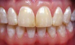 Что такое флюороз зубов?
