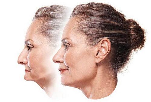 Изменение профиля лица при полной потере зубов