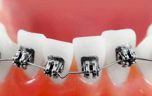 В чем принцип, как брекеты выравнивают зубы?