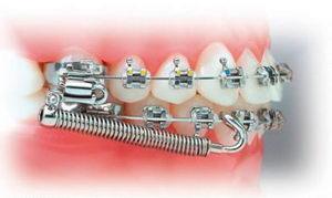 Для чего нужны ортодонтические аппараты?