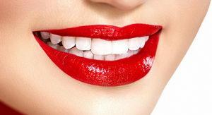 Процедура отбеливания зубов: особенности, разновидности