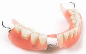Какие существуют разновидности зубных протезов?