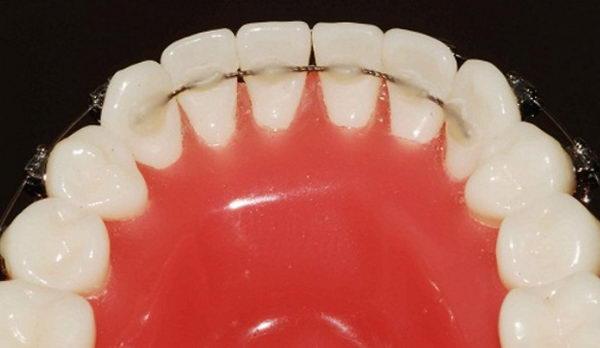 Закрепления результата выравнивания зубов брекет-системой ретейнером
