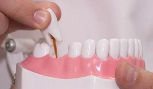 В чем причина, почему выпадают зубы?