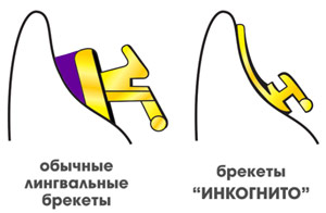 Инкогнито и обычные лингвальные брекеты