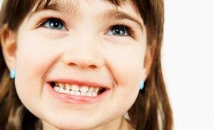 Как сделать детский прикус правильным?