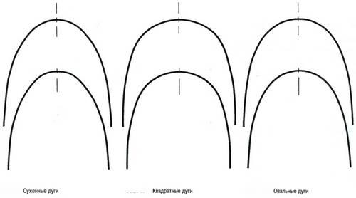 Форма дуг