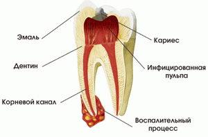 Что такое корневой канал: строение зуба