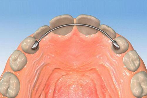 Несъемный ретейнер после брекетов, чтобы зубы не разъехались