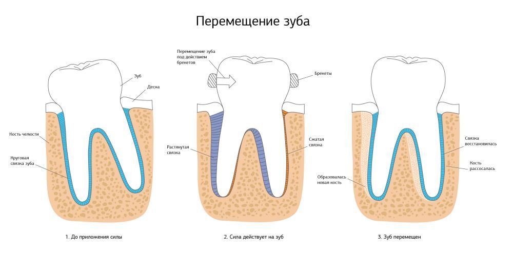 Перемещение зуба под воздействием брекетов