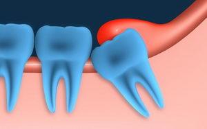 Зубы мудрости: стоит ли их удалять?