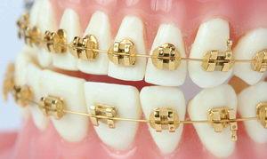 Золотые брекеты: особенности, отзывы
