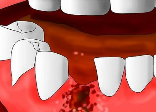 Лунка после удаления зуба для установки брекетов
