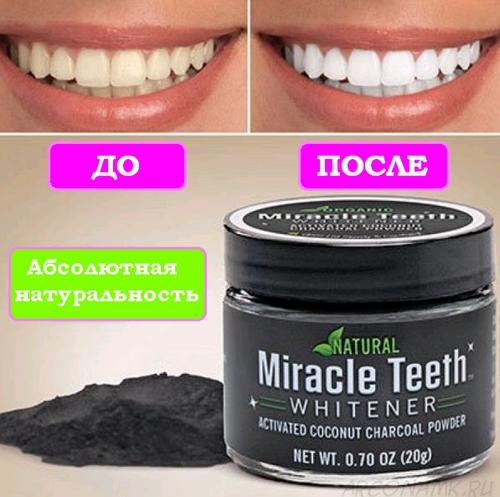 Отбеливатель для зубов до и после
