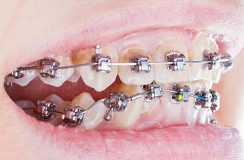 Брекеты касаются зубов