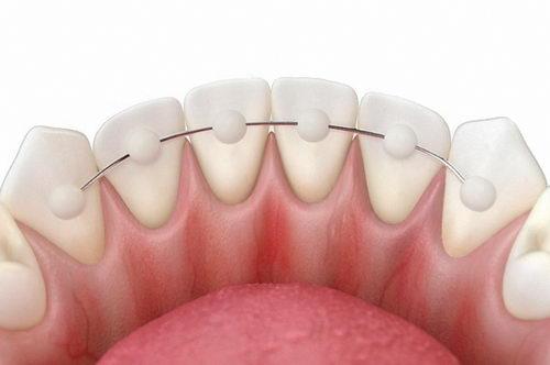 Металлическая проволока на зубы после брекетов