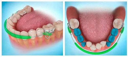 Ортодонтический бампер
