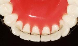 Зачем ретейнеры на зубы после брекетов?