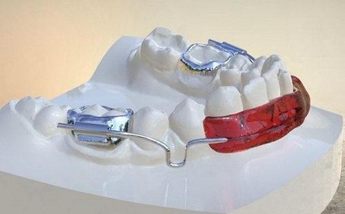 Установка губного бампера на нижнюю челюсть
