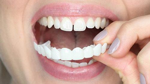 Уствнока съемных накладных виниров на зубы