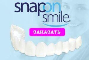 Заказать Snap On Smile
