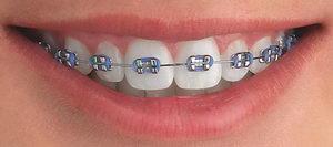 Брекеты Макриз на зубах