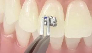 Фиксация брекета на зубе
