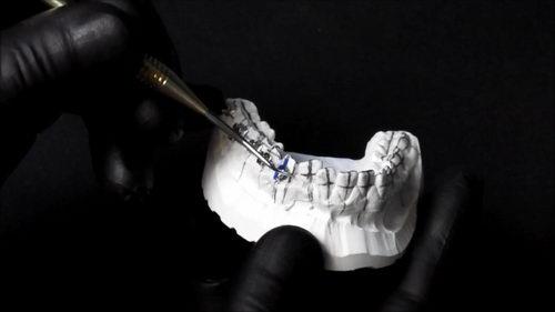 Фиксация металлических брекетов на гибсовой моделе