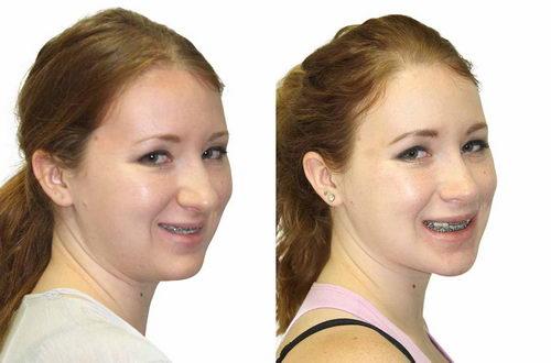 Изменение лица во время ношения брекетов