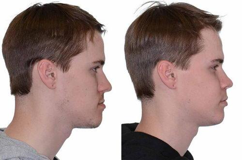 Коррекция профиля лица