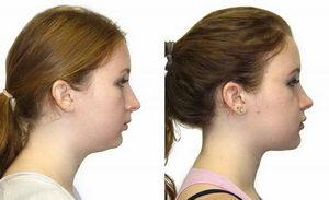 Как меняется лицо после брекетов? Фото