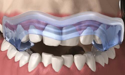 Ортотик на зубы