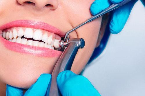 Профчистка зубов