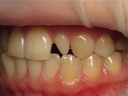 Шиповидные зубы