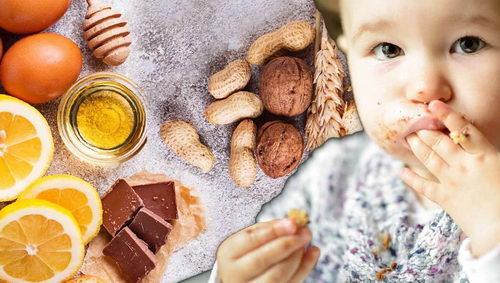 Пищевая аллергия