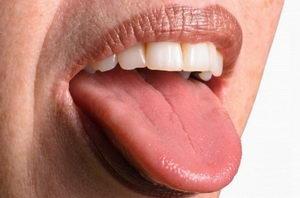 Чувство жжения на языке