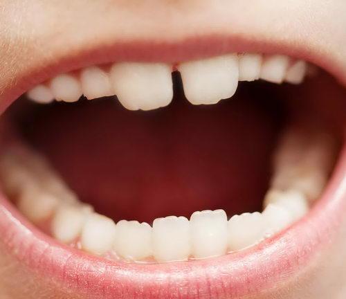 Большие молочные зубы