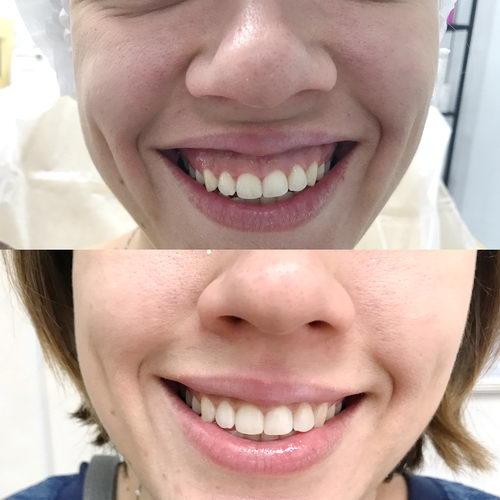 Десневая улыбка до и после коррекции