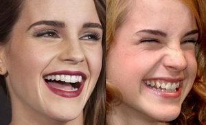 Коррекция десневой улыбки улучшает эстетику лица