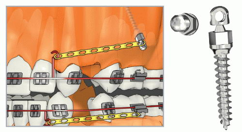 Мини-имплант в ортодонтии с круглой головкой