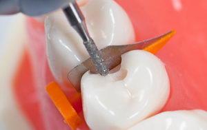 Процедура увеличения расстояния между зубами
