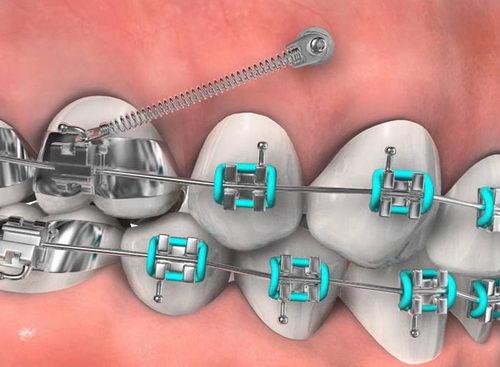 Установленный мини-имплант