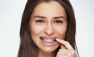 Почему шатаются зубы после установки брекетов?